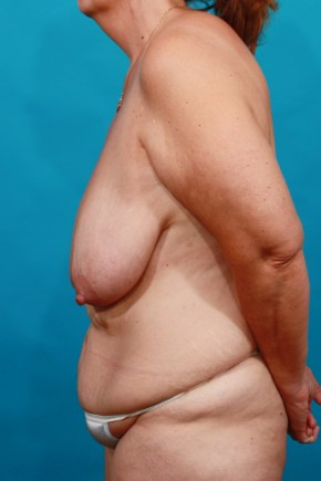 Before Photo - Plastic Surgery After Dramatic Weight Loss - Case #16817 - BL / TT - Lateral View