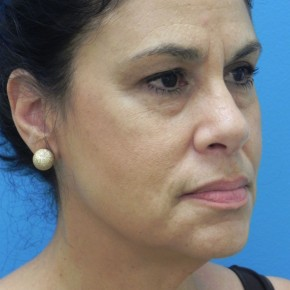 Before Photo - Facelift - Case #16824 - Facelift/Lower Blepharoplasty/Browlift     3 months post-op - Oblique View