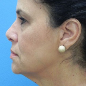 Before Photo - Facelift - Case #16824 - Facelift/Lower Blepharoplasty/Browlift     3 months post-op - Lateral View