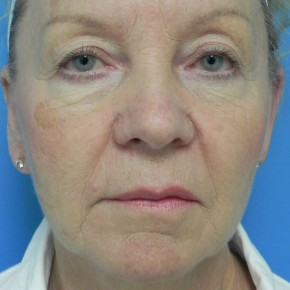 Before Photo - Facelift - Case #16825 - Facelift/Upper & Lower Blepharoplasty/Laser Resurfacing to Full Face/Juvederm      7 months post-op - Frontal View