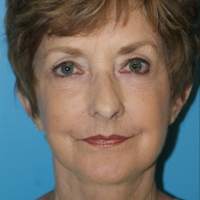 After Photo - Facelift - Case #16827 - Facelift/Liposuction of the Neck/Laser Resurfacing to Full Face     3 months post-op - Frontal View