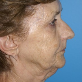 Before Photo - Facelift - Case #16827 - Facelift/Liposuction of the Neck/Laser Resurfacing to Full Face     3 months post-op - Lateral View
