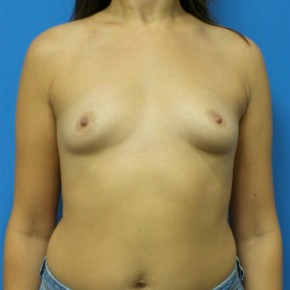 Before Photo - Breast Augmentation - Case #16835 - Submuscular Breast Augmentation 315cc High Cohesive - Medium Height - Moderate Projection Silicone Gel Implants - Frontal View