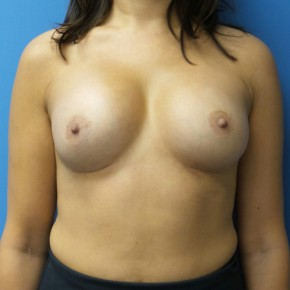 After Photo - Breast Augmentation - Case #16835 - Submuscular Breast Augmentation 315cc High Cohesive - Medium Height - Moderate Projection Silicone Gel Implants - Frontal View