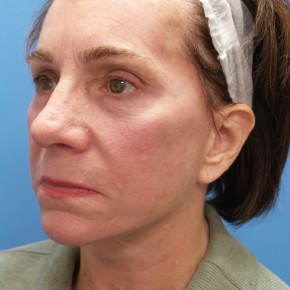 After Photo - Facelift - Case #16836 - Facelift/Rhinoplasty/Laser Resurfacing to Full Face - Oblique View