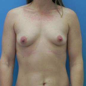 Before Photo - Breast Augmentation - Case #16838 - Submuscular Breast Augmentation 330cc on Left Side - 315cc on Right Side - Medium Height - Moderate Plus Projection Silicone Gel Implants - Frontal View
