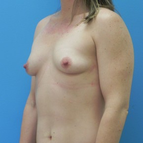 Before Photo - Breast Augmentation - Case #16838 - Submuscular Breast Augmentation 330cc on Left Side - 315cc on Right Side - Medium Height - Moderate Plus Projection Silicone Gel Implants - Oblique View