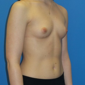 Before Photo - Breast Augmentation - Case #16840 - Submuscular Breast Augmentation 390cc Shaped - Medium Height - High Profile Silicone Gel Implants - Oblique View