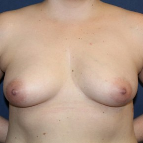 Before Photo - Breast Augmentation - Case #16844 - Breast Augmentation with 24 hour rapid recovery and Sientra implants - Frontal View