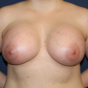 After Photo - Breast Augmentation - Case #16844 - Breast Augmentation with 24 hour rapid recovery and Sientra implants - Frontal View