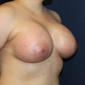 After Photo - Breast Augmentation - Case #16844 - Breast Augmentation with 24 hour rapid recovery and Sientra implants - Oblique View