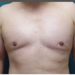 After Photo - Gynecomastia - Case #16873 - Gynecomastia Correction - Frontal View