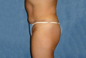 After Photo - Tummy Tuck - Case #16874 - Abdominoplasty - Lateral View
