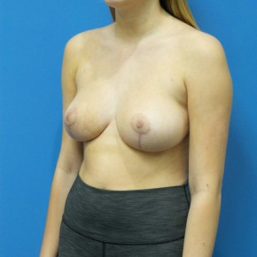 After Photo - Breast Reduction - Case #16886 - Bilateral Breast Reduction - Oblique View