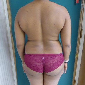 Before Photo - Mommy Makeover - Case #16888 - Body Contouring and Standard Abdominoplasty - Posterior Oblique View