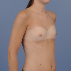Before Photo - Breast Augmentation - Case #16892 - Breast Augmentation with smooth round gel implants - Lateral View