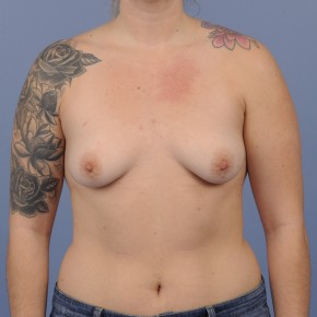 Before Photo - Breast Augmentation - Case #16895 - Breast Augmentation with smooth round gel implants - Frontal View