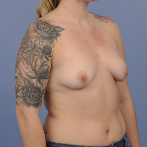 Before Photo - Breast Augmentation - Case #16895 - Breast Augmentation with smooth round gel implants - Lateral View