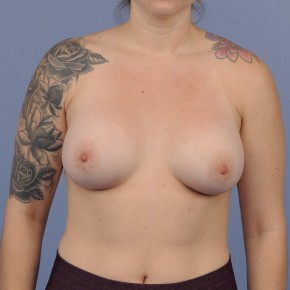 After Photo - Breast Augmentation - Case #16895 - Breast Augmentation with smooth round gel implants - Frontal View