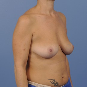 Before Photo - Breast Augmentation - Case #16891 - Breast Augmentation with smooth round gel implants - Lateral View