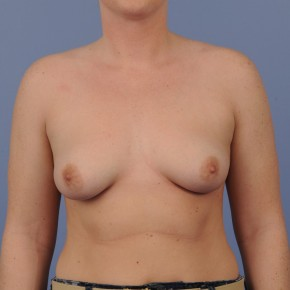 Before Photo - Breast Augmentation - Case #16894 - Breast Augmentation with smooth round gel implants - Frontal View