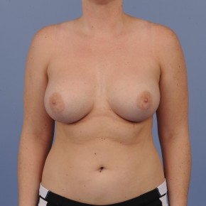 After Photo - Breast Augmentation - Case #16894 - Breast Augmentation with smooth round gel implants - Frontal View