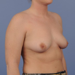 Before Photo - Breast Augmentation - Case #16894 - Breast Augmentation with smooth round gel implants - Lateral View
