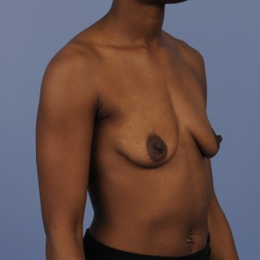 Before Photo - Breast Augmentation - Case #16893 - Breast Augmentation with smooth round gel implants - Lateral View