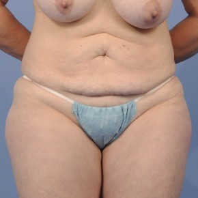 Before Photo - Tummy Tuck - Case #16896 - Frontal View