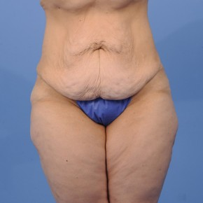 Before Photo - Tummy Tuck - Case #16899 - Frontal View