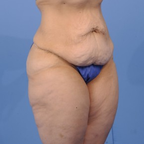 Before Photo - Tummy Tuck - Case #16899 - Lateral View