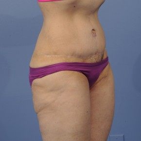 After Photo - Tummy Tuck - Case #16899 - Lateral View