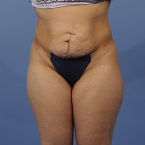 Before Photo - Tummy Tuck - Case #16900 - Frontal View