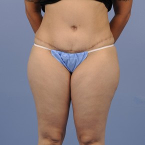 After Photo - Tummy Tuck - Case #16900 - Frontal View