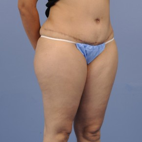 After Photo - Tummy Tuck - Case #16900 - Lateral View