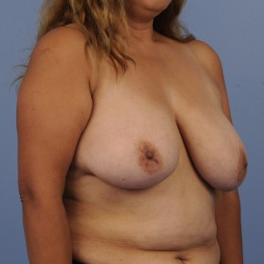Before Photo - Breast Reduction - Case #16902 - Lateral View