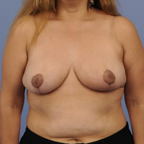 After Photo - Breast Reduction - Case #16902 - Frontal View