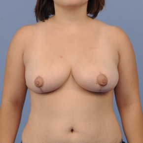 After Photo - Breast Reduction - Case #16903 - Frontal View