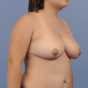 After Photo - Breast Reduction - Case #16903 - Lateral View