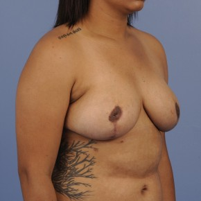 After Photo - Breast Reduction - Case #16905 - Lateral View