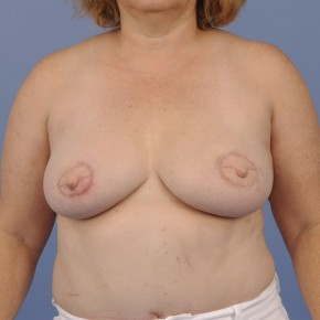 After Photo - Breast Reconstruction - Case #16906 - Frontal View