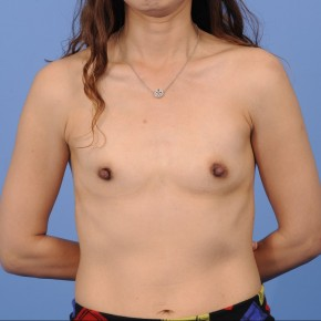 Before Photo - Breast Reconstruction - Case #16907 - Frontal View