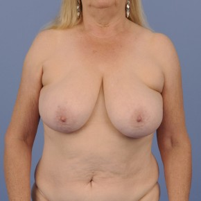 Before Photo - Breast Reconstruction - Case #16908 - Frontal View