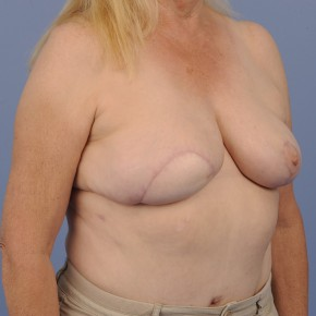 After Photo - Breast Reconstruction - Case #16908 - Lateral View