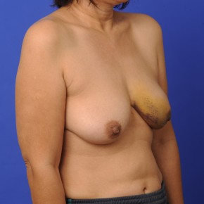 Before Photo - Breast Reconstruction - Case #16909 - Lateral View