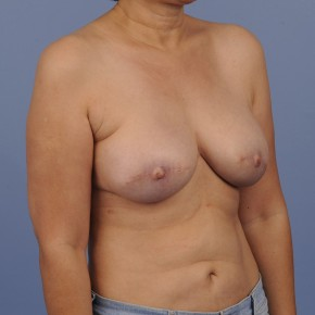 After Photo - Breast Reconstruction - Case #16909 - Lateral View