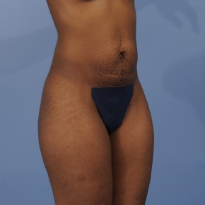 Before Photo - Mommy Makeover - Case #16910 - Posterior Oblique View