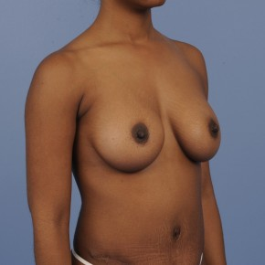 After Photo - Mommy Makeover - Case #16910 - Oblique View
