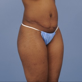 After Photo - Mommy Makeover - Case #16910 - Posterior Oblique View