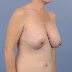 Before Photo - Mommy Makeover - Case #16912 - Oblique View